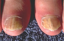 腳指夏天透透氣~~灰指甲醜醜不要來