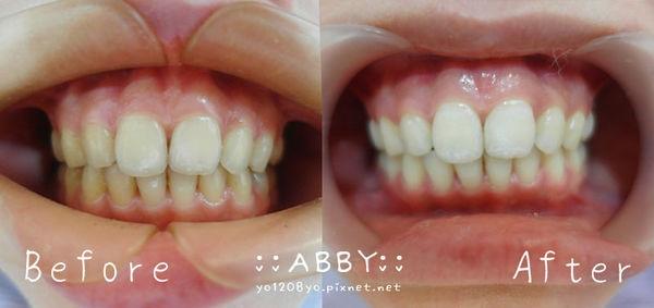 牙齒雷射美白初體驗 ► 桃園春日路牙醫推薦:完美牙醫診所~林宛瑄醫師 ❤