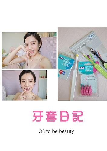 牙套 ♪|Vlog|牙套女孩必看!!! 教你矯正期間如何正確清潔牙齒