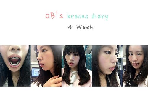 牙套 ♪ |全方位矯正|第四週、五週 拔完四顆牙開始戴頭帽臉型也變囉!
