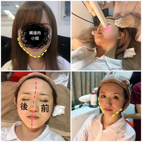  醫美保養 想擁有VV臉就去雅美姬做口內雷射吧!