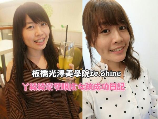 ▌分享 ▌板橋光澤診所Dr.Shine ♡ ㄚ綾綾變身雙眼皮女孩日記~台北縫雙眼皮推薦