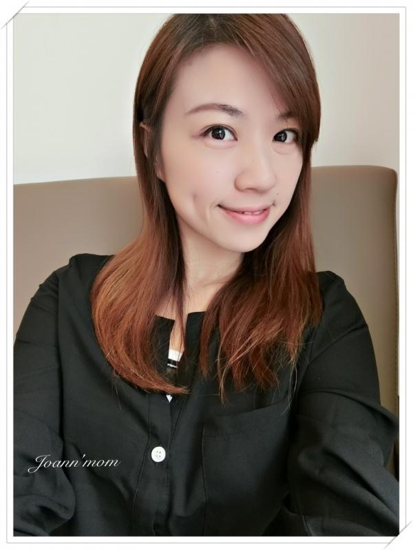 極緻醫美 縫雙眼皮CIMG1019-083.JPG