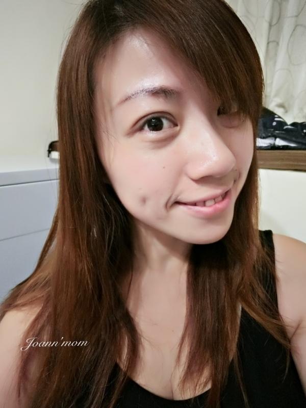 極緻醫美 縫雙眼皮CIMG0969-081.JPG