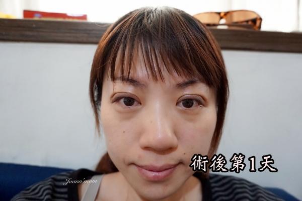 極緻醫美 縫雙眼皮DSC06638-030.JPG