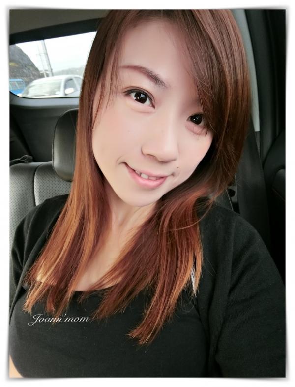 極緻醫美 縫雙眼皮CIMG0954-071.JPG