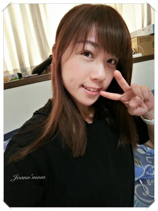 極緻醫美 縫雙眼皮CIMG0251-073.JPG