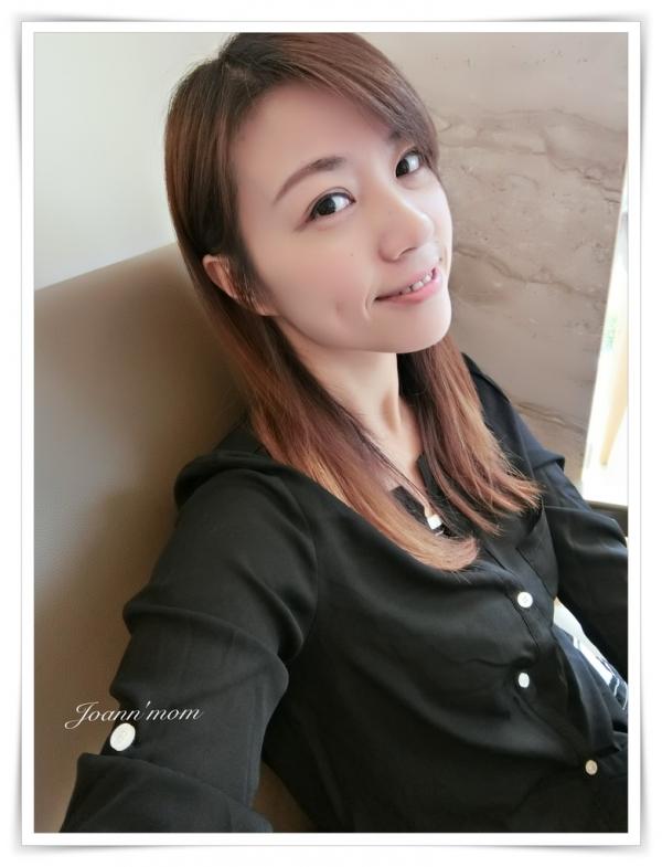 極緻醫美 縫雙眼皮CIMG1021-084.JPG
