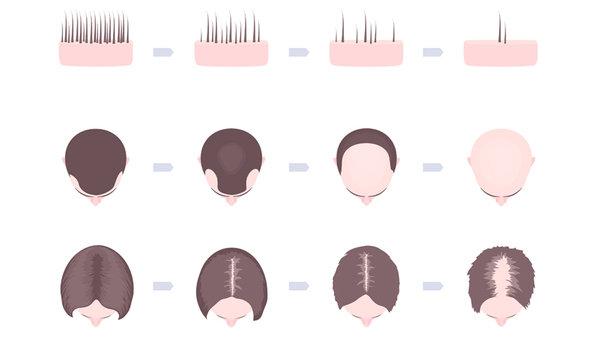 「中胚層療法+生髮頭盔」拯救你的頂上危機