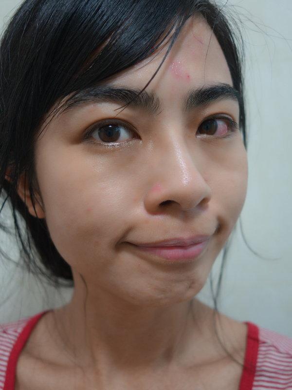 洗臉後臉部近照-after0213whenwas1.JPG