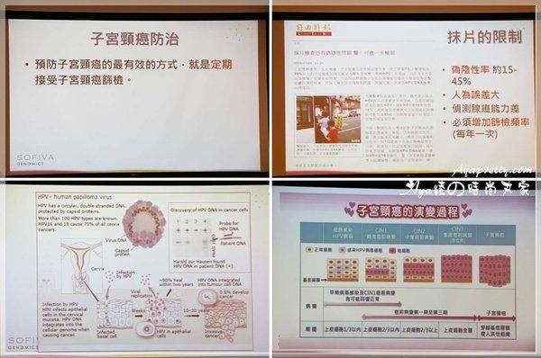 SOFIVA 子宮頸癌防治 (10).jpg
