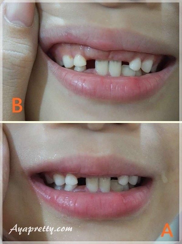 德國百靈Oral-B 海底總動員 D10兒童充電電動牙刷  (4).jpg