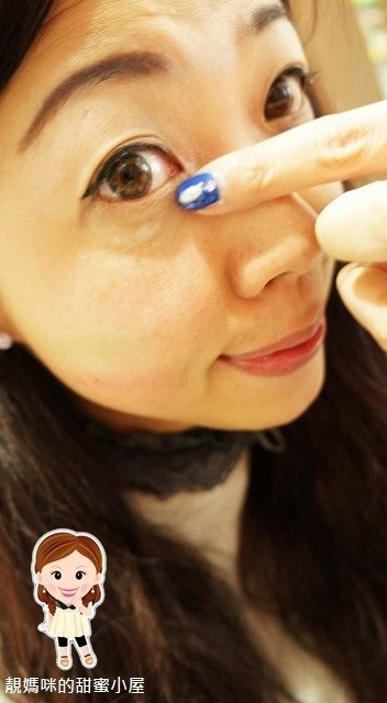 eyelift8.jpg