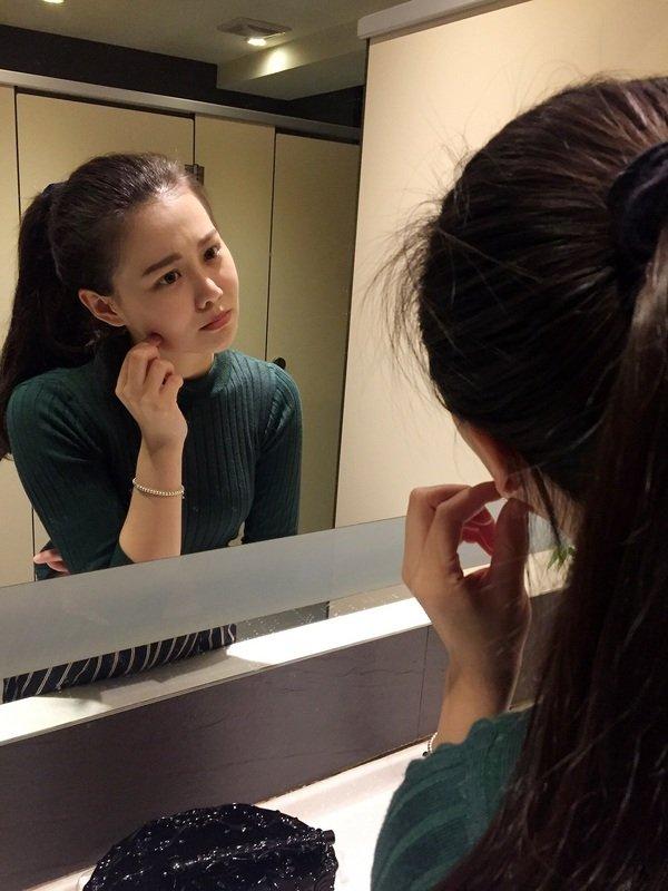 007瘦小臉一直是台灣女性熱愛的醫美療程,但卻遇不到施打肉毒桿菌未見效果的狀況!.JPG