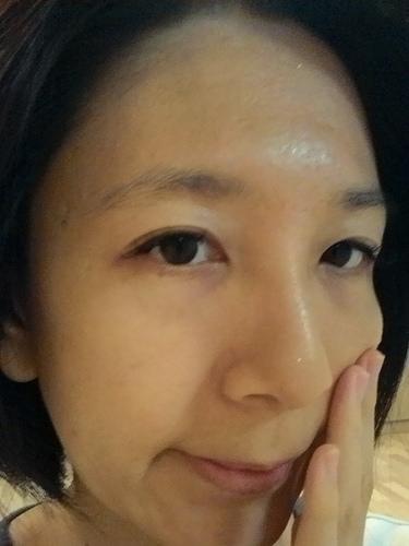 (捷運西湖站)內湖醫美/OxyGeneo活氧泡泡電波/美麗爾診所~肌膚加強保養呵護