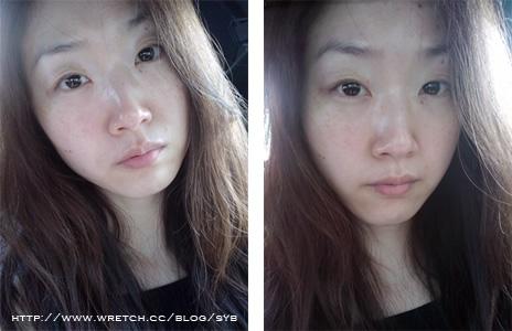 <合作分享> Skin Perfect 碳粉柔膚雷射 +免費體驗大贈送