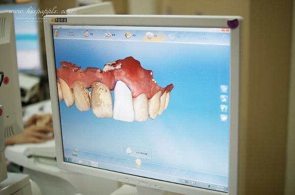 【逼先生專欄】悅庭牙醫診所3D全瓷牙冠記錄:Teeth Magic 無敵的牙齒魔術!!!