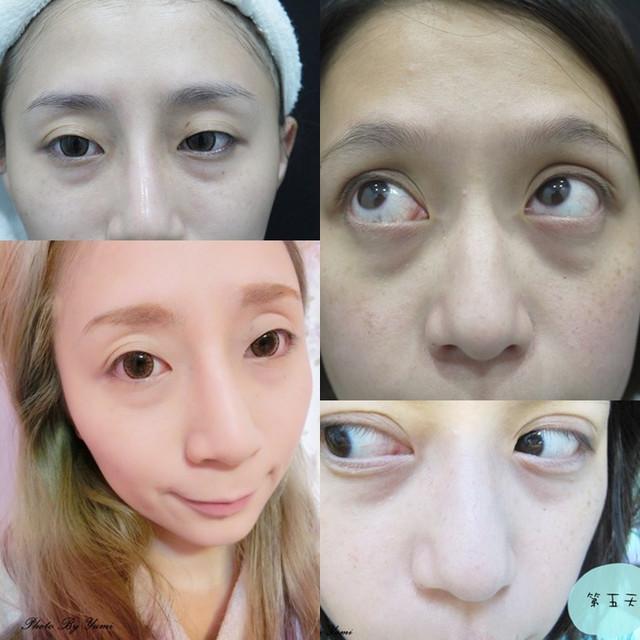 *醫美*熊貓眼別過來。亮眼雷射改善黑眼圈