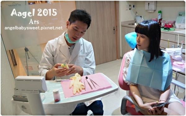 「植牙矯正日記Ⅱ」全口牙的治療矯正美白紀錄,專業的術前規劃及解說 「大妹無敵美牙變身日記」PART 1,冷光美白
