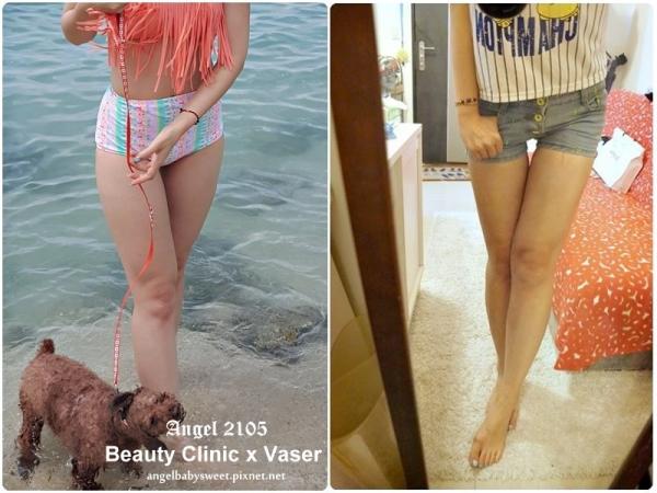 「醫美」想擁有少女時代的美腿  Vaser威塑脂雕蜜大腿 in 台中佳醫美人