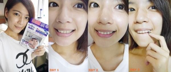 【牙齒保養篇】皮膚美白了,那牙齒呢 ? CP值超標的 FastWhiteTM齒速白牙托式快速牙齒美白系統