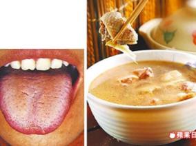 口臭、舌苔厚,口腔異味 飲食可改善
