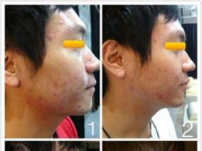 痘痘治療案例分享