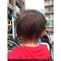 【成長日誌】天哪!我家的達樂哥頭上長釘子(疔子),居然得到傳說中的嬰兒毛囊發炎