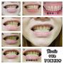 ◊ 告別黃板牙 7天牙齒就閃亮亮  ➩ Protis普麗斯牙齒美白貼片