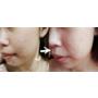 [醫美] 醫美初體驗大冒險♥櫻花雷射+淨膚雷射除痘疤大作戰!