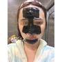 [美容保養]清除粉刺黑頭的救星!清出來的黑頭粉刺超明顯!