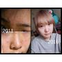 [護膚保養] 關於我從壁癌痘痘肌到變成正常人皮膚的一些經驗談