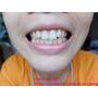 [牙齒美白/冷光美白|保養] (紀錄)台中北屯區億植牙醫診所♥第一次冷光美白~告別黃板牙人生!