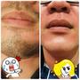 |台南除毛|+台南朵菈形象美學館+  拒絕鬍渣滿臉,輕鬆化身乾淨型男!