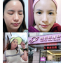 信義區皮膚科體驗→爛痘粉刺就靠Thera Clean醫洗臉,達到全面性修護不再繼續爆發 BY~飛悅皮膚科
