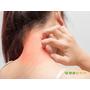 異位性皮膚炎退散! 「濕敷療法」最速效
