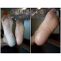 【台南除腳皮】足健康足體養生會館 | 技術高強老師傅 V.S. 陳年灰黑厚腳皮 | 不可思議的修腳魔法  | 恢復柔嫩腳丫就是有撇步