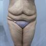 腹部平坦如少女