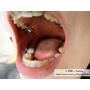 [ 牙套日記 ] No.10 牙齒上排舌側加橡皮筋