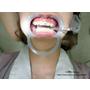[ 牙套日記 ] No.11 牙套怠惰期之牙齦發炎